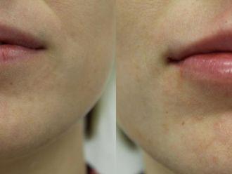 Powiększanie ust kwasem hialuronowym-657936