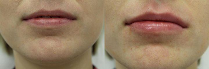 Powiększanie ust kwasem hialuronowym - przed i po