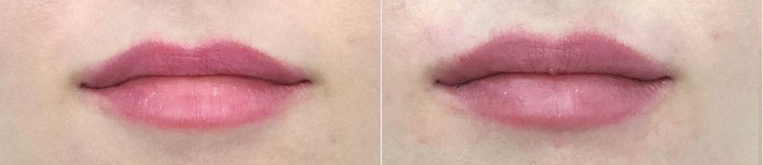 Powiększanie ust kwasem hialuronowym Neauvia Lips - przed i po