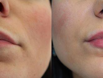 Powiększanie ust kwasem hialuronowym-657942