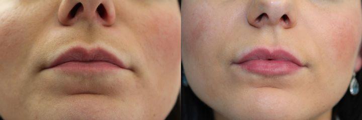 Kupczyńska, Diana  (2013052717531Powiększanie ust kwasem hialuronowym - przed i po