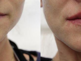 Powiększanie ust kwasem hialuronowym-657945