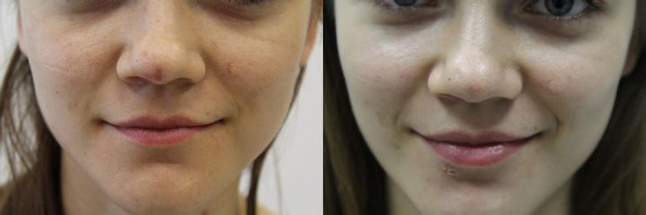 Laserowe usuwanie tatuażu - przed i po