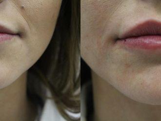 Powiększanie ust kwasem hialuronowym-657949