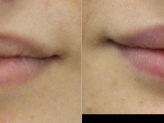 Powiększanie ust kwasem hialuronowym-657953