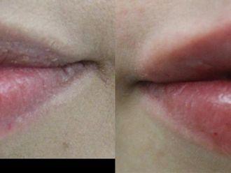 Powiększanie ust kwasem hialuronowym-657955