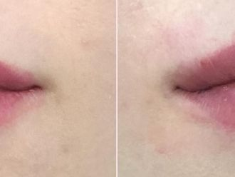 Powiększanie ust kwasem hialuronowym-657957