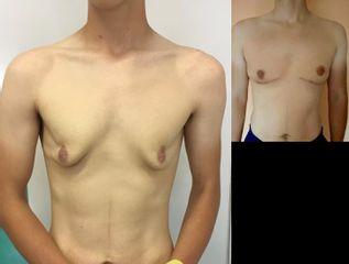 Ginekomastia po dużej utracie masy ciała: przed i po