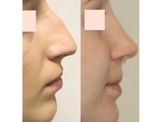 Całkowita korekcja nosa przed i pp