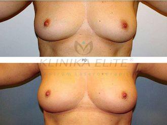 Powiększanie biustu tłuszczem-740181