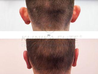 Korekcja uszu-740205
