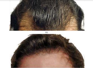 transplantacja_włosów_1
