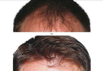 transplantacja_włosów_3