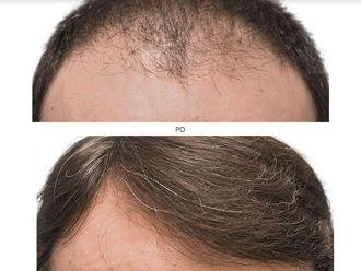 Przeszczep włosów-740253