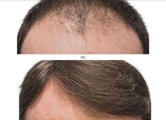 transplantacja_włosów_4