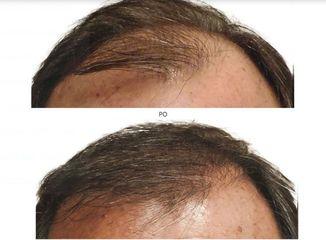 transplantacja_włosów_5
