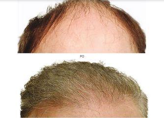 transplantacja_włosów_6