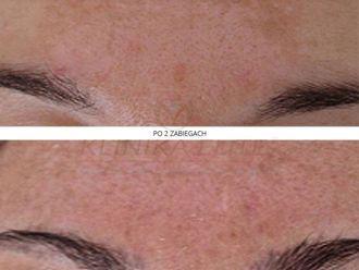 Laserowe zabiegi dermatologii estetycznej-740264