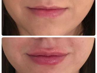 Powiększanie ust kwasem hialuronowym-661554