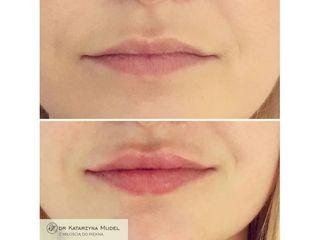 Nawilżanie ust kwas hialuronowym: przed i po