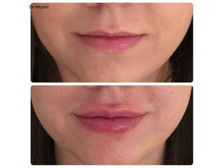 Korekta asymetrii wargi górnej + uzupełnienie objętości ust: przed ipo