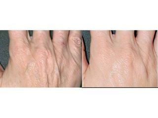 Odmładzanie dłoni: przed i po