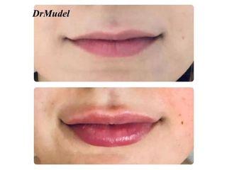 Powiększenie ust: przed i po