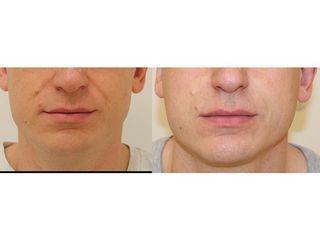 Wypełnienie bruzd nosowo-wargowch: przed i po