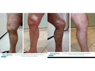 Przed i po: leczenie żylaków
