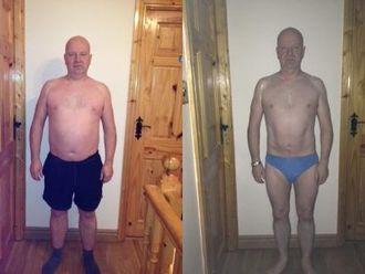 Liposukcja (odsysanie tłuszczu)-656976