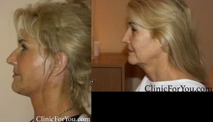 Cosmetic surgery   Facelift 1 After 1
