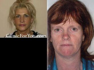 Facelift, Lifting twarzy (podciąganie powłok twarzy) - 657006