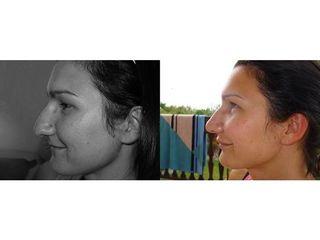 Plastyka nosa - przed i po