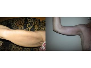 Brachioplastyka - przed i po