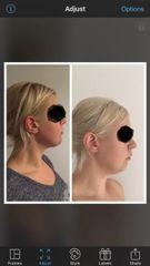 Liposukcja podbródka i plastyka brody - przed i po