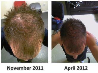 Przeszczep włosów-701772