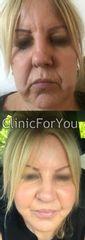 Lifting twarzy i liposukcja podbródka - przed i po