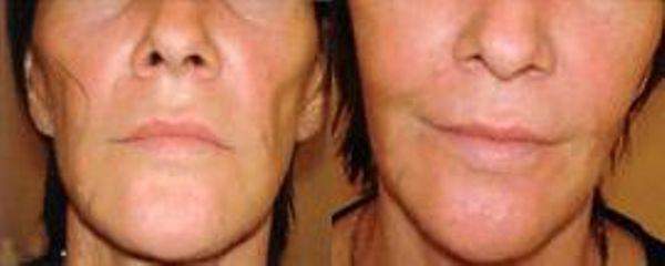 Przed i po: wypełnianie bruzd nosowo-wargowych kwasem hialuronowym