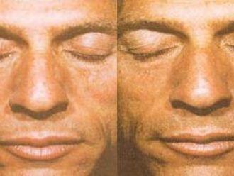 Anti aging - medycyna przeciwstarzeniowa - 653836