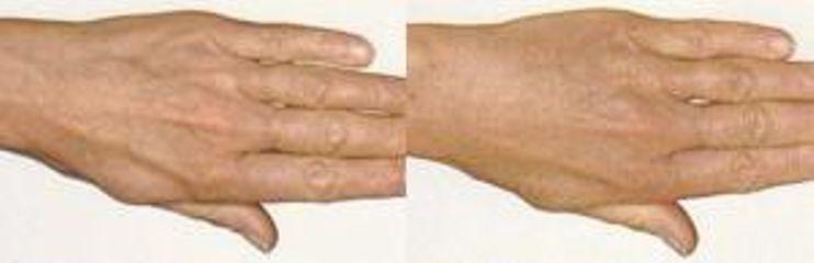 Przed i po: mezoterapia dłoni