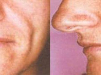 Anti aging - medycyna przeciwstarzeniowa - 653844