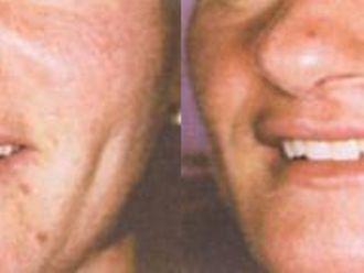 Anti aging - medycyna przeciwstarzeniowa - 653845