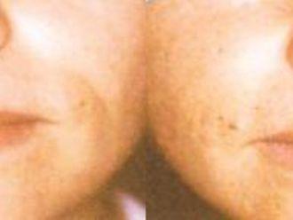 Anti aging - medycyna przeciwstarzeniowa - 653848