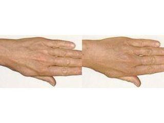 Przed i po - mezoterapia dłoni