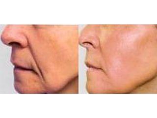 Przed i po wypełnianie bruzd  nosowo-wargowych kwasem hialuronowym