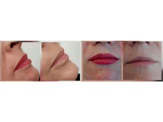 Przed i po - mikropigmentacja