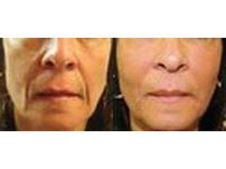 Przed i po - wypełnianie bruzd nosowo-wargowych kwasem hialuronowym