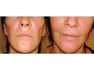 Przed i po - wypełnianie bruzd nosowo-wargowych kwasem hialuronowym.jpg