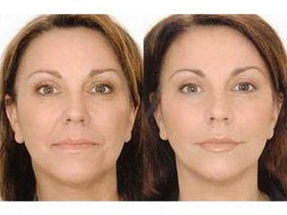 Przed i po - mezoterapia