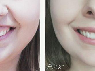 Powiększanie ust (Augmentacja) - 661918
